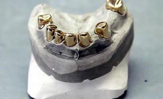 Kako su izgledali prvi umjetni zubi?