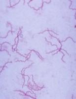 Kako se prenosi sifilis?