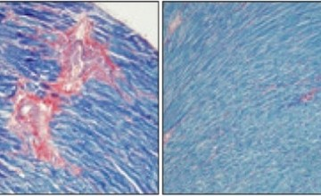 Miševi s viškom BubR1 proteinom rjeđe imaju srčanu fibrozu (desno).