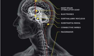 Alzheimer-pejsmejker