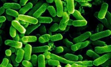 e-coli34