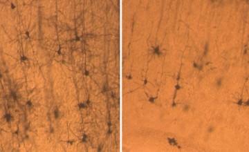 Neuroni normalnog miša (lijevo) duži su i gušći nego neuroni miša s nedostatkom SNX27 (desno).