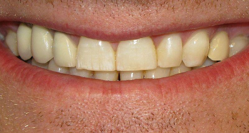 Izbjeljivanje zubi kod kuće