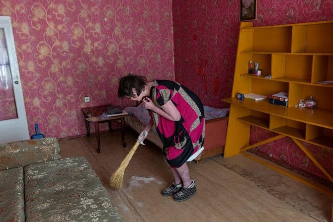Elena Shershova iz Verkhnezeyska pati od psorijaze i skuplja otpale ljuske svoje kože. (Credit: William Daniels)