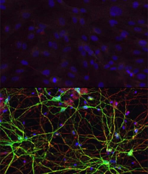 """Gornja slika predstavlja stanice kože, koji se nakon izlaganja miRNK i signalnim molekulama (transkripcijskim faktorima) prevode u """"medial spiny"""" neurone, što vidimo na slici ispod. (Credit: Yoo Lab)"""