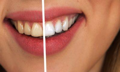 žuti zubi